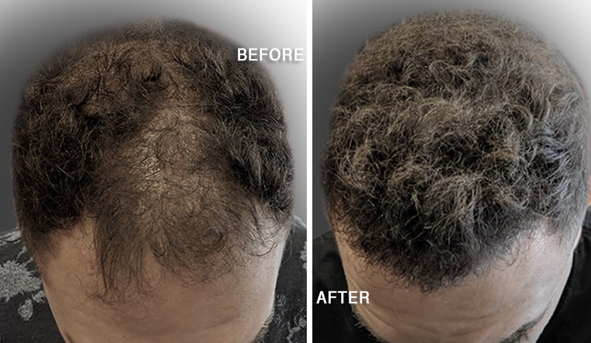 Hair Transplant Treatment